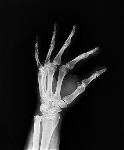 Bone strength matters!
